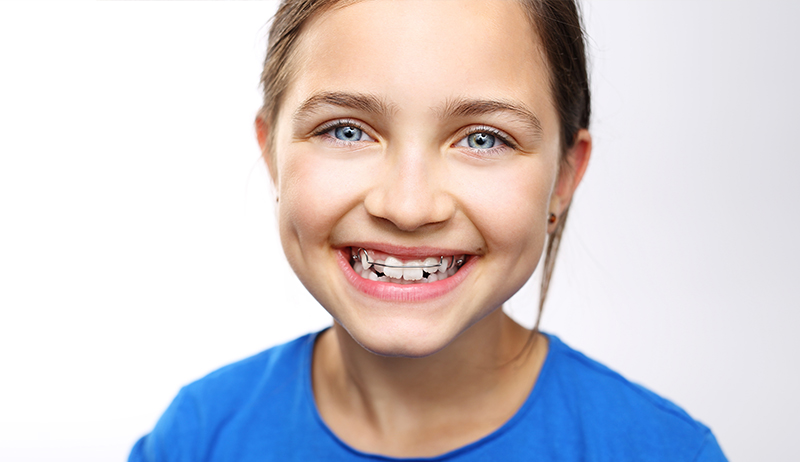 Is it time for braces?