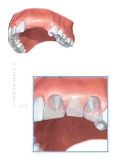 Multiple-teeth dental implants