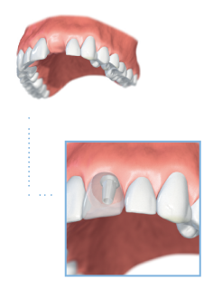 Single-tooth implant